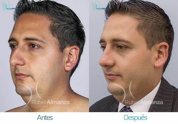 rinoplastia-2017-jh-lateral-izquierdo-ruber-almanza-antes-y-despues-bogota-colombia