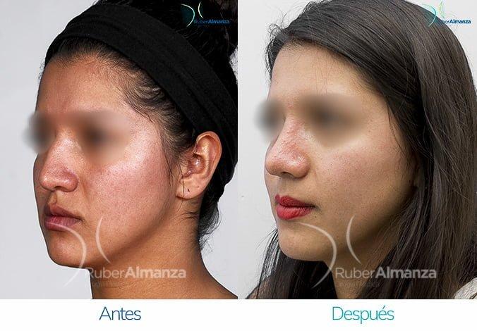 rinoplastia-antes-y-despues-ruber-almanza-bogota-colombia-am-diagonal-izquierdo