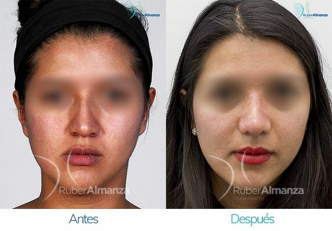 rinoplastia-antes-y-despues-ruber-almanza-bogota-colombia-am-frontal