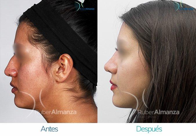rinoplastia-antes-y-despues-ruber-almanza-bogota-colombia-am-lateral-izquierdo