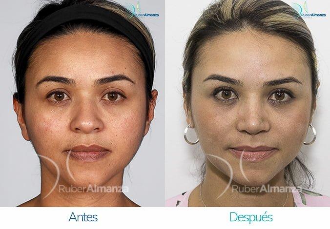rinoplastia-antes-y-despues-ruber-almanza-bogota-colombia-cg-frontal