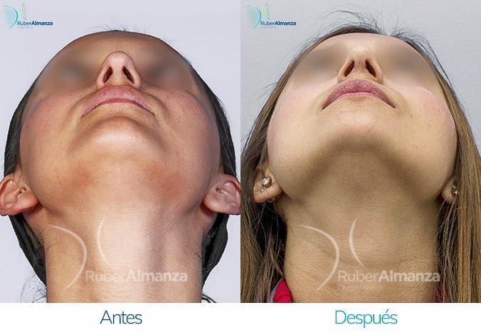 rinoplastia-antes-y-despues-ruber-almanza-bogota-colombia-cp-cenital