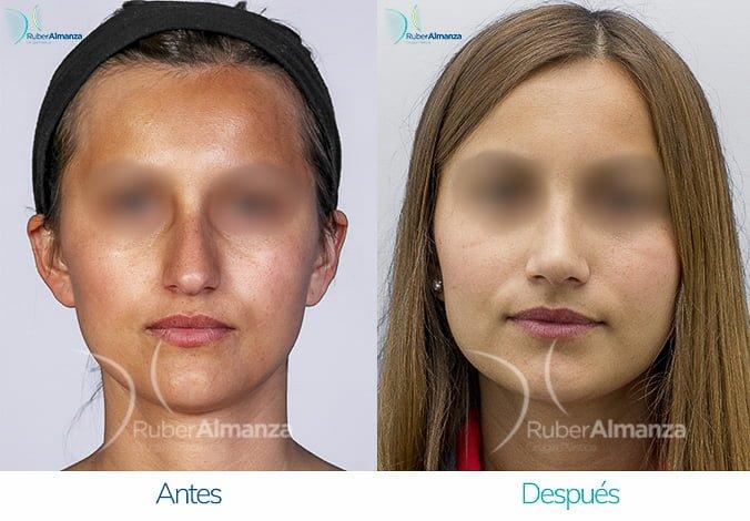 rinoplastia-antes-y-despues-ruber-almanza-bogota-colombia-cp-frontal