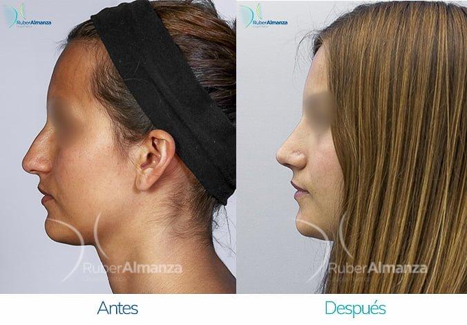 rinoplastia-antes-y-despues-ruber-almanza-bogota-colombia-cp-lateral-izquierdo