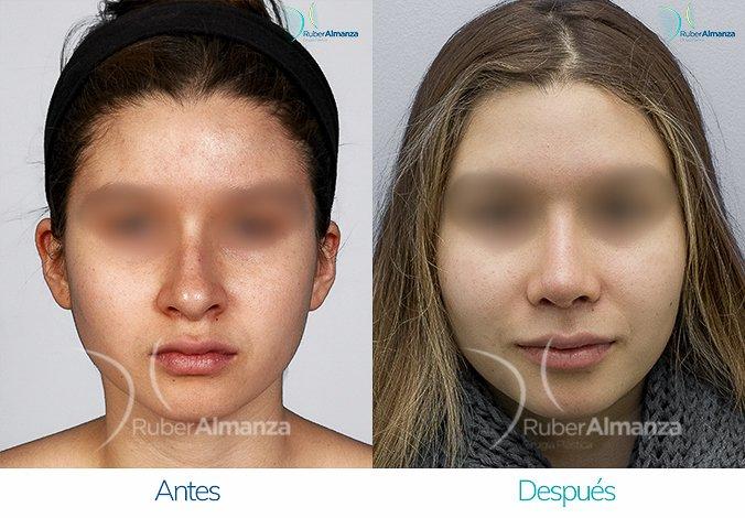 rinoplastia-antes-y-despues-ruber-almanza-bogota-colombia-eb-frontal