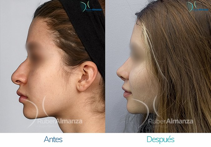 rinoplastia-antes-y-despues-ruber-almanza-bogota-colombia-eb-lateral-izquierdo