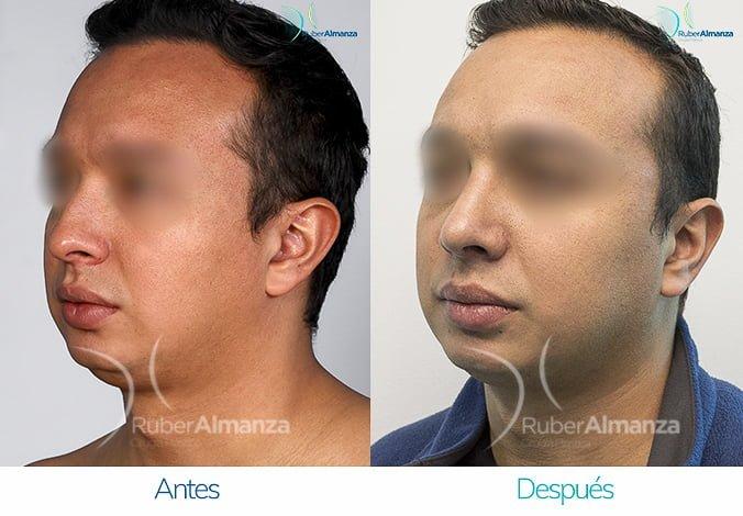 rinoplastia-antes-y-despues-ruber-almanza-bogota-colombia-fg-diagonal-izquierdo