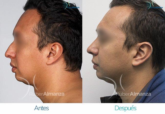 rinoplastia-antes-y-despues-ruber-almanza-bogota-colombia-fg-lateral-izquierdo