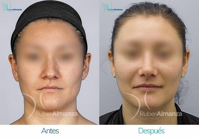 rinoplastia-antes-y-despues-ruber-almanza-bogota-colombia-lp-frontal