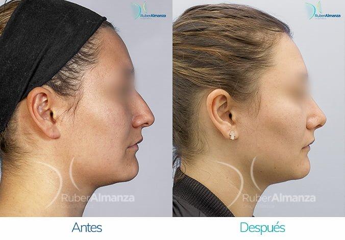 rinoplastia-antes-y-despues-ruber-almanza-bogota-colombia-lp-lateral-derecho
