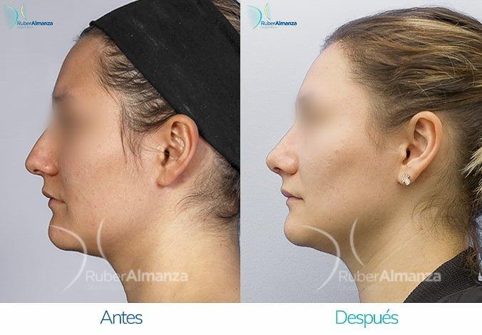 rinoplastia-antes-y-despues-ruber-almanza-bogota-colombia-lp-lateral-izquierdo