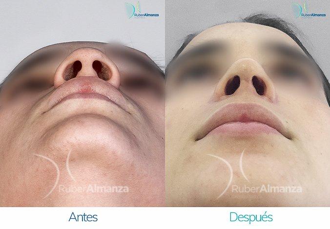 Rinoplastia Antes y despues Ruber Almanza Bogota Colombia MC Cenital