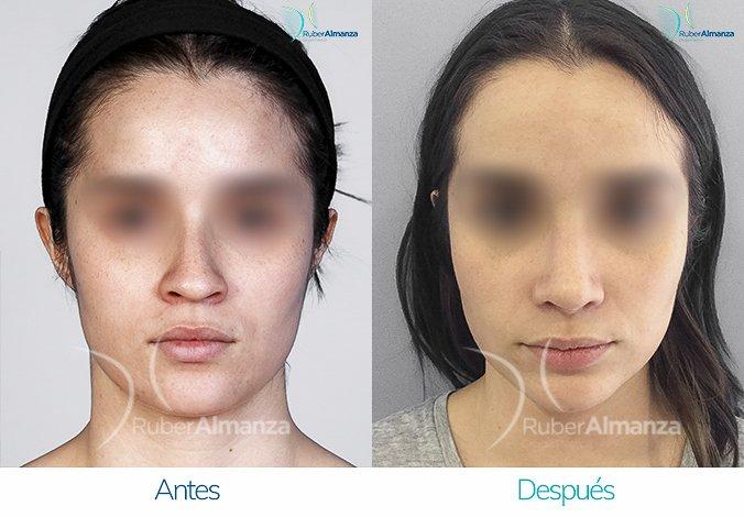 rinoplastia-antes-y-despues-ruber-almanza-bogota-colombia-mc-frontal