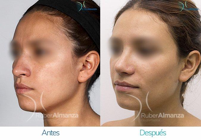 rinoplastia-antes-y-despues-ruber-almanza-bogota-colombia-nc-diagonal-izquierdo