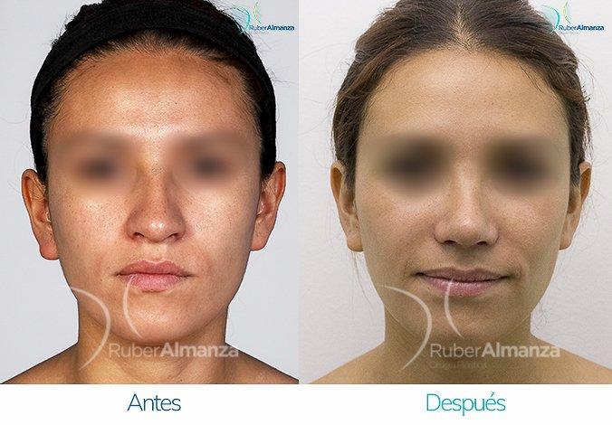 rinoplastia-antes-y-despues-ruber-almanza-bogota-colombia-nc-frontal