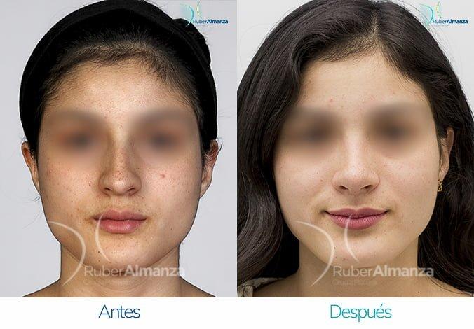 rinoplastia-antes-y-despues-ruber-almanza-bogota-colombia-pe-frontal