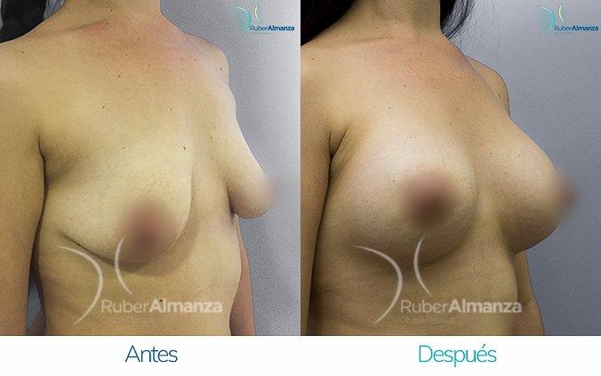 evantamiento de busto con implantes Antes y despues Ruber Almanza Bogota Colombia LL Diagonal Derecho