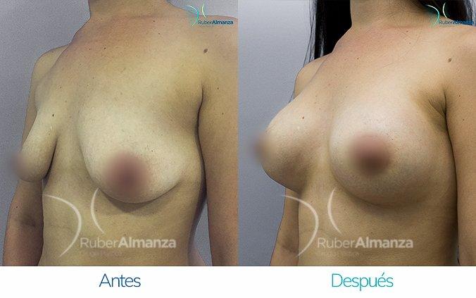 levantamiento-de-busto-con-implantes-antes-y-despues-ruber-almanza-bogota-colombia-ll-diagonal-izquierdo