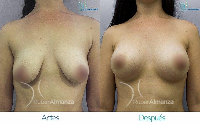 levantamiento-de-busto-con-implantes-antes-y-despues-ruber-almanza-bogota-colombia-ll-frontal