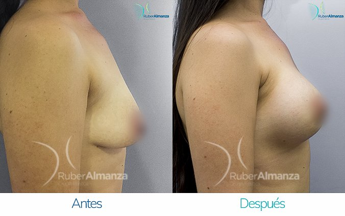 levantamiento-de-busto-con-implantes-antes-y-despues-ruber-almanza-bogota-colombia-ll-lateral-derecho