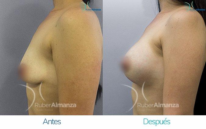 levantamiento-de-busto-con-implantes-antes-y-despues-ruber-almanza-bogota-colombia-ll-lateral-izquierdo