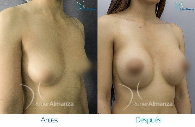 levantamiento-de-busto-con-implantes-antes-y-despues-ruber-almanza-bogota-colombia-lm-diagonal-derecho