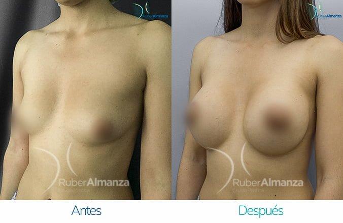 levantamiento-de-busto-con-implantes-antes-y-despues-ruber-almanza-bogota-colombia-lm-diagonal-izquierdo