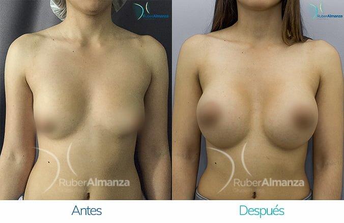 levantamiento-de-busto-con-implantes-antes-y-despues-ruber-almanza-bogota-colombia-lm-frontal