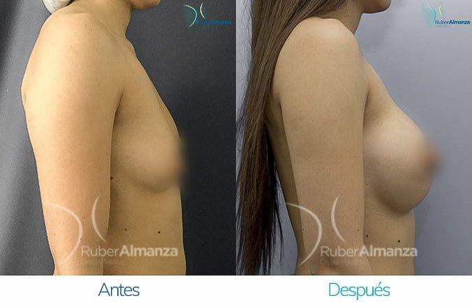 levantamiento-de-busto-con-implantes-antes-y-despues-ruber-almanza-bogota-colombia-lm-lateral-derecho