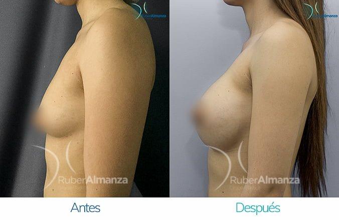 levantamiento-de-busto-con-implantes-antes-y-despues-ruber-almanza-bogota-colombia-lm-lateral-izquierdo