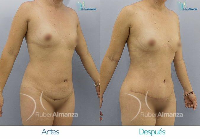 abdominoplastia-antes-y-despues-ruber-almanza-bogota-colombia-ar-diagonal-derecho