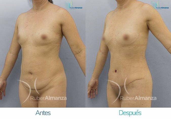 abdominoplastia-antes-y-despues-ruber-almanza-bogota-colombia-ar-diagonal-izquierdo