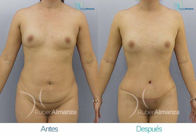 abdominoplastia-antes-y-despues-ruber-almanza-bogota-colombia-ar-frontal