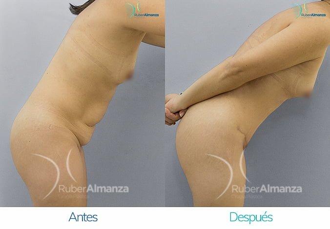 abdominoplastia-antes-y-despues-ruber-almanza-bogota-colombia-ar-lateral-derecho-2