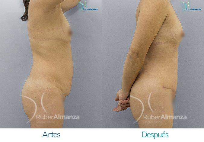 abdominoplastia-antes-y-despues-ruber-almanza-bogota-colombia-ar-lateral-derecho