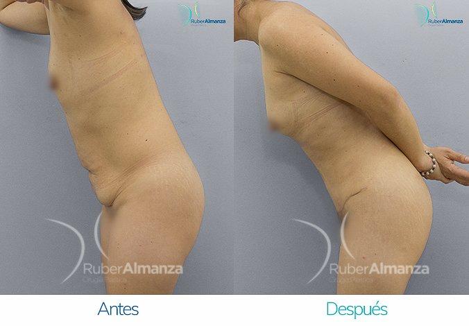 abdominoplastia-antes-y-despues-ruber-almanza-bogota-colombia-ar-lateral-izquierdo-2