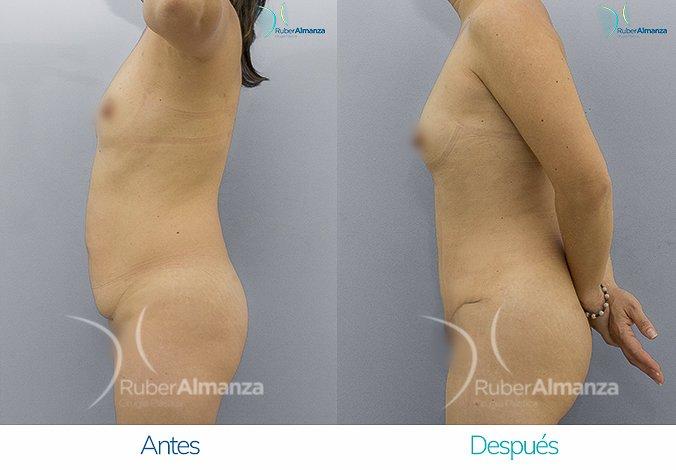 abdominoplastia-antes-y-despues-ruber-almanza-bogota-colombia-ar-lateral-izquierdo