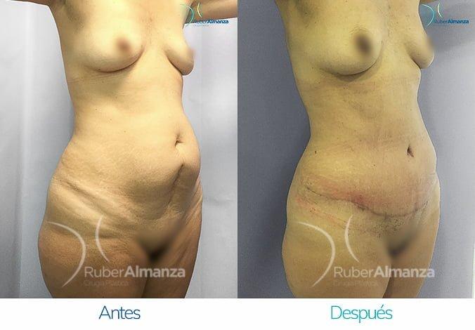 abdominoplastia-antes-y-despues-ruber-almanza-bogota-colombia-ph-diagonal-derecho