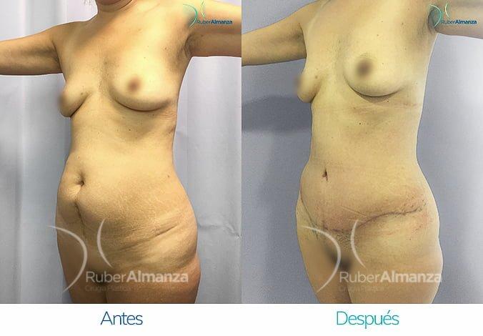 abdominoplastia-antes-y-despues-ruber-almanza-bogota-colombia-ph-diagonal-izquierdo