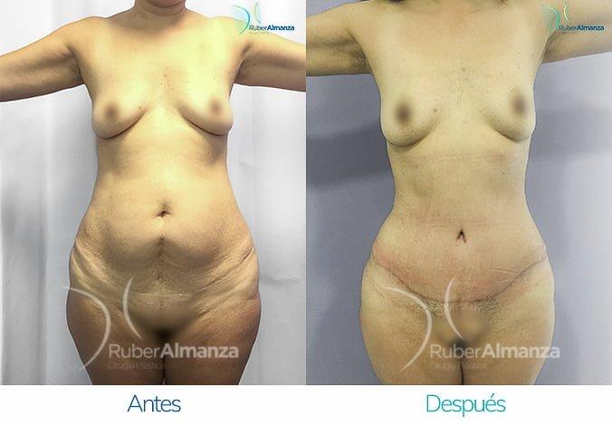 abdominoplastia-antes-y-despues-ruber-almanza-bogota-colombia-ph-frontal