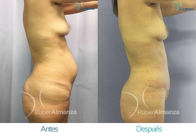 abdominoplastia-antes-y-despues-ruber-almanza-bogota-colombia-ph-lateral-derecho