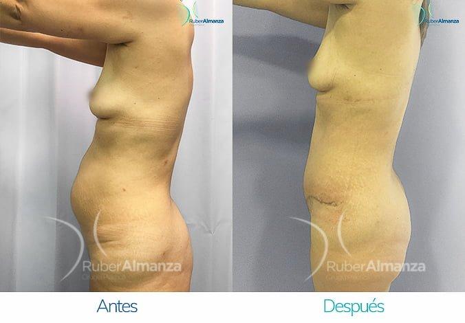 abdominoplastia-antes-y-despues-ruber-almanza-bogota-colombia-ph-lateral-izquierdo