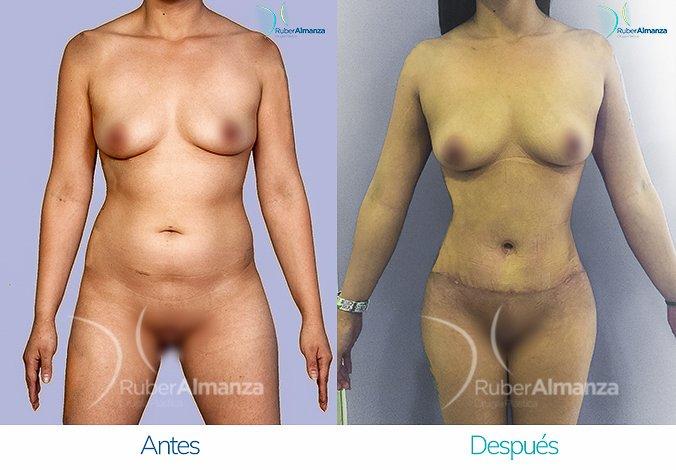 abdominoplastia-con-liposuccion-antes-y-despues-ruber-almanza-bogota-colombia-jl-frontal