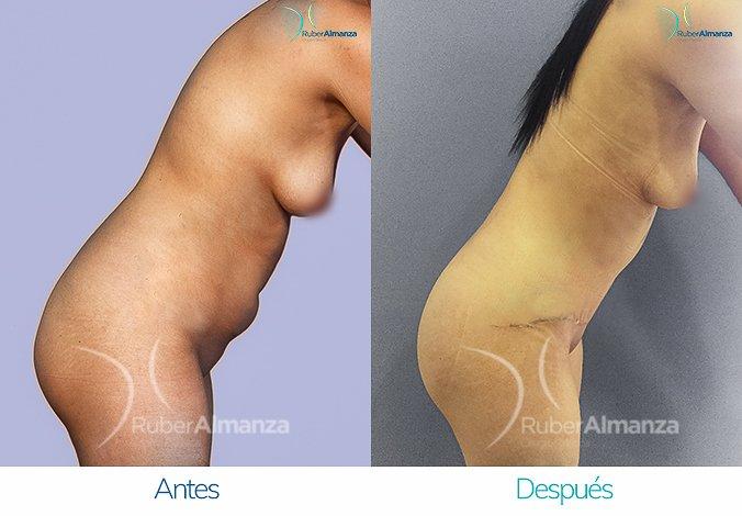 abdominoplastia-con-liposuccion-antes-y-despues-ruber-almanza-bogota-colombia-jl-lateral-derecho-2