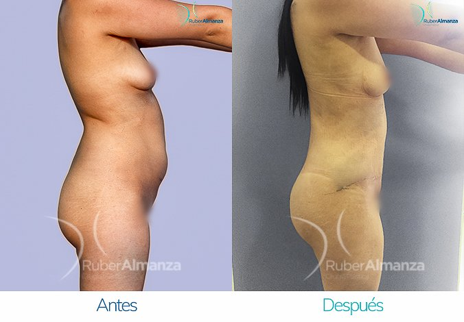 abdominoplastia-con-liposuccion-antes-y-despues-ruber-almanza-bogota-colombia-jl-lateral-derecho