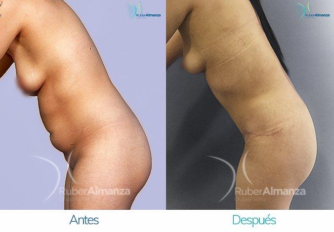 abdominoplastia-con-liposuccion-antes-y-despues-ruber-almanza-bogota-colombia-jl-lateral-izquierdo-2