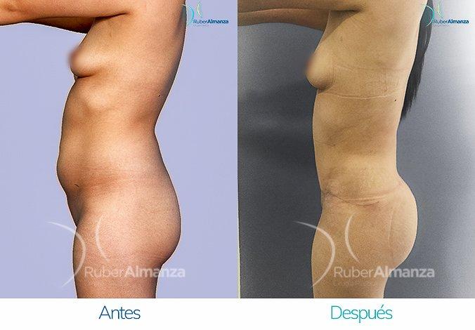 abdominoplastia-con-liposuccion-antes-y-despues-ruber-almanza-bogota-colombia-jl-lateral-izquierdo