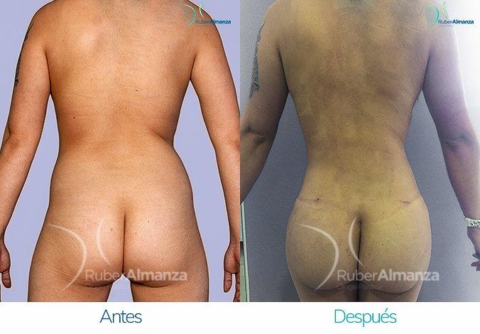 abdominoplastia-con-liposuccion-antes-y-despues-ruber-almanza-bogota-colombia-jl-posterior