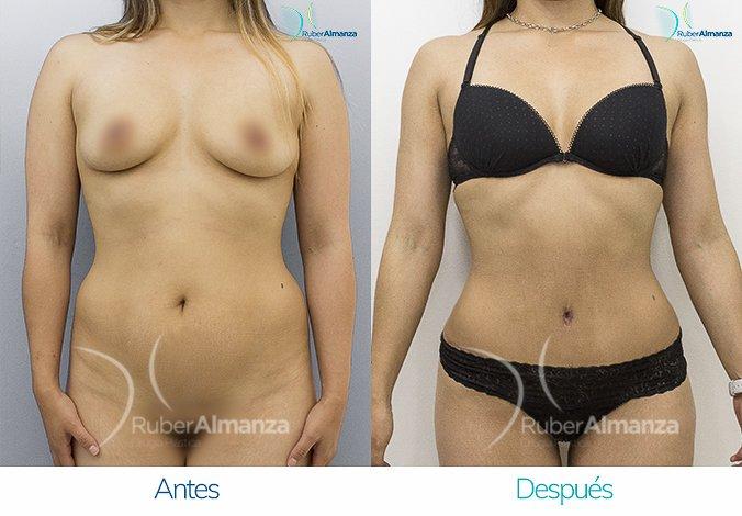 abdominoplastia-con-liposuccion-antes-y-despues-ruber-almanza-bogota-colombia-kg-frontal