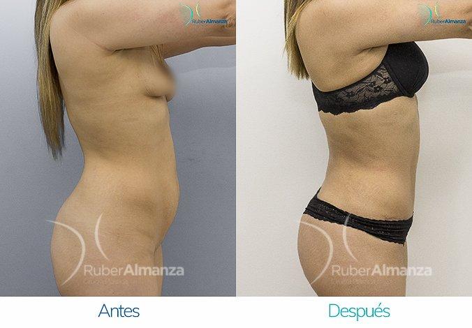 abdominoplastia-con-liposuccion-antes-y-despues-ruber-almanza-bogota-colombia-kg-lateral-derecho